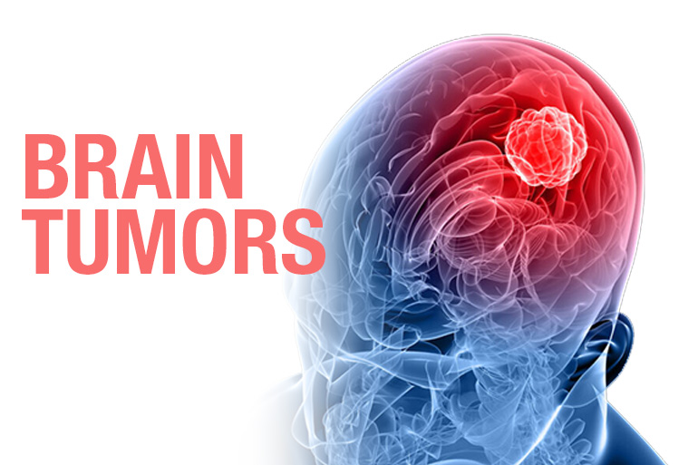 https://yuzyilhospital.com/wp-content/uploads/2021/02/Brain-tumors-1.jpg